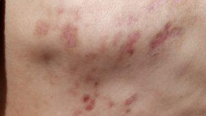 疱疹 食事 帯状 治療